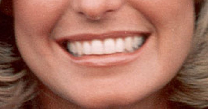 Can You Name the 1970's Actress? Our Lips are Sealed.
