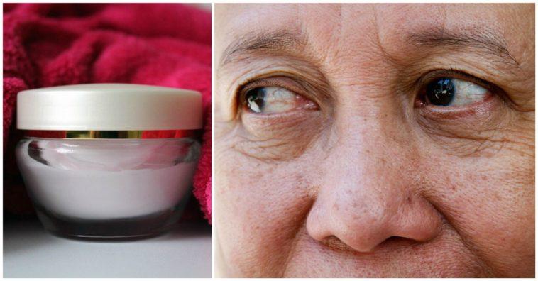 Natural Ways To Get Rid Of Eye Wrinkles