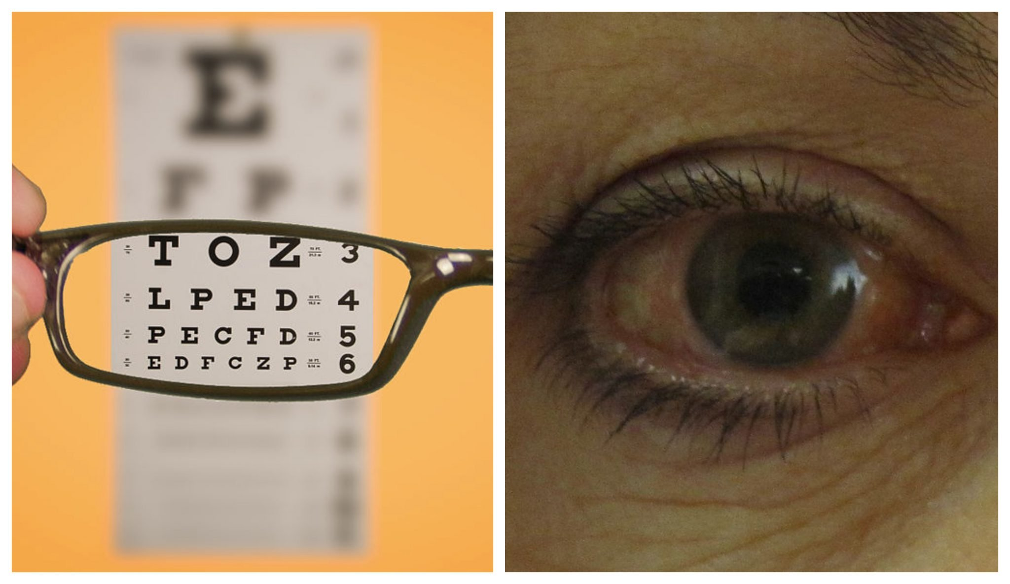 New Treatments Emerging For People Battling These 5 Eye Diseases