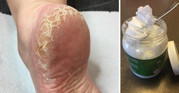 cracked-heels-remedies