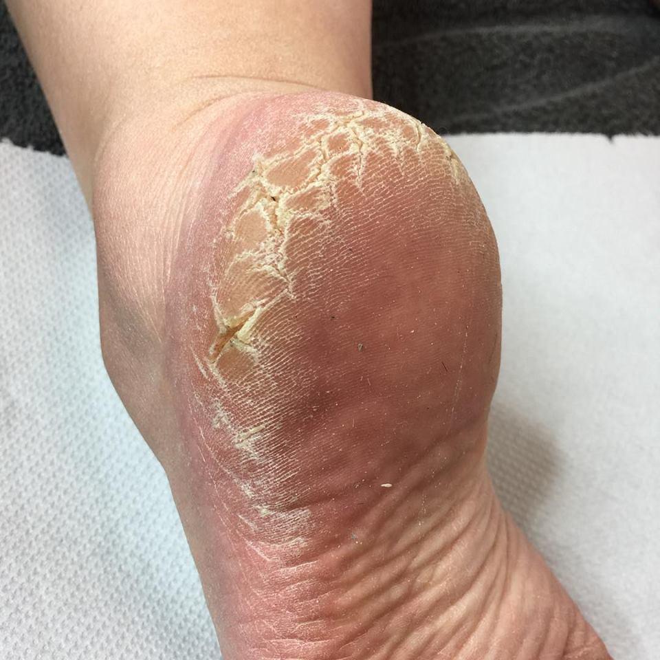 Rid Of Dry, Cracked Feet