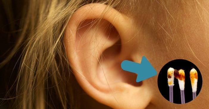 earwax-cover
