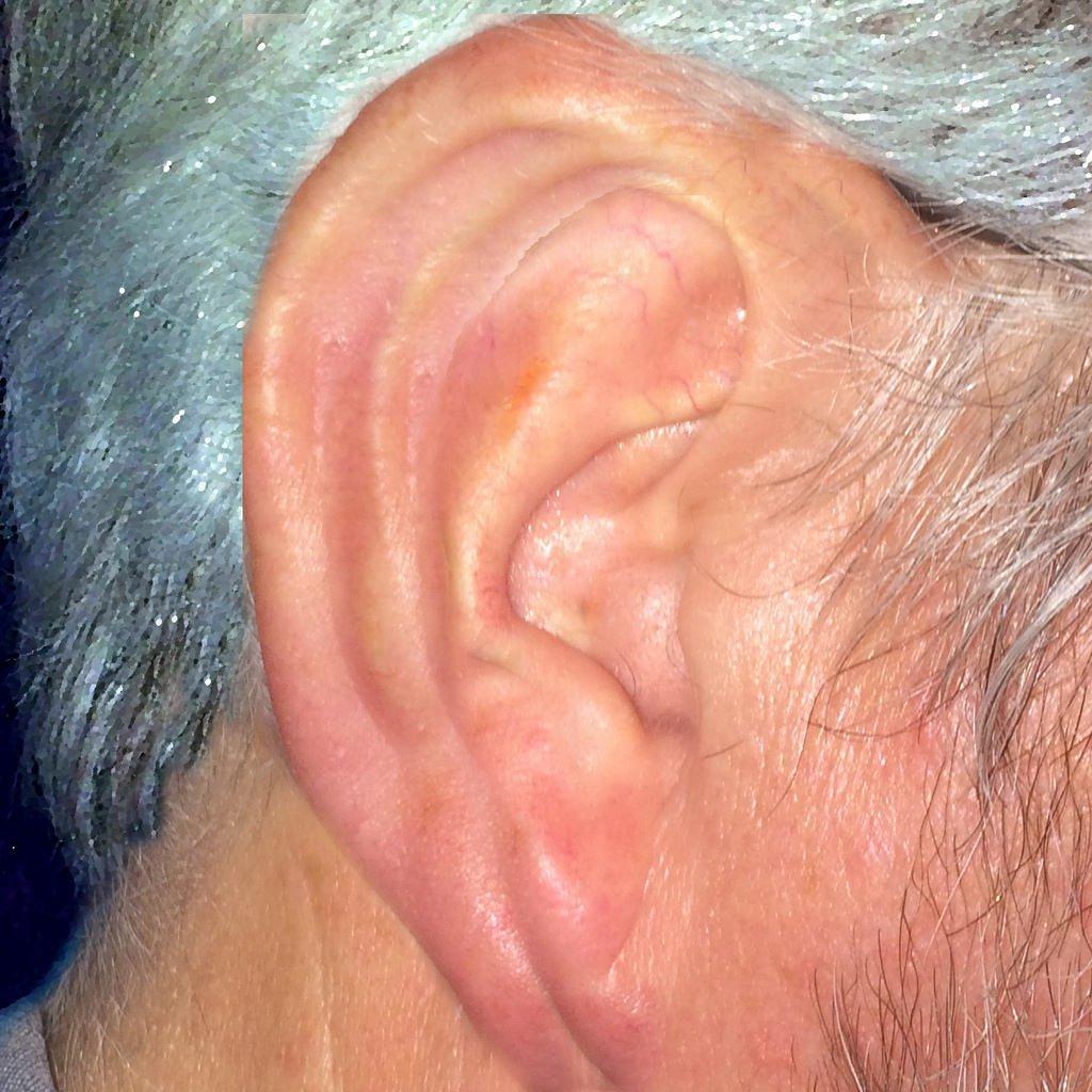 older ear