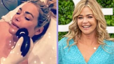 denise richards defends non-invasive cosmetic procedure