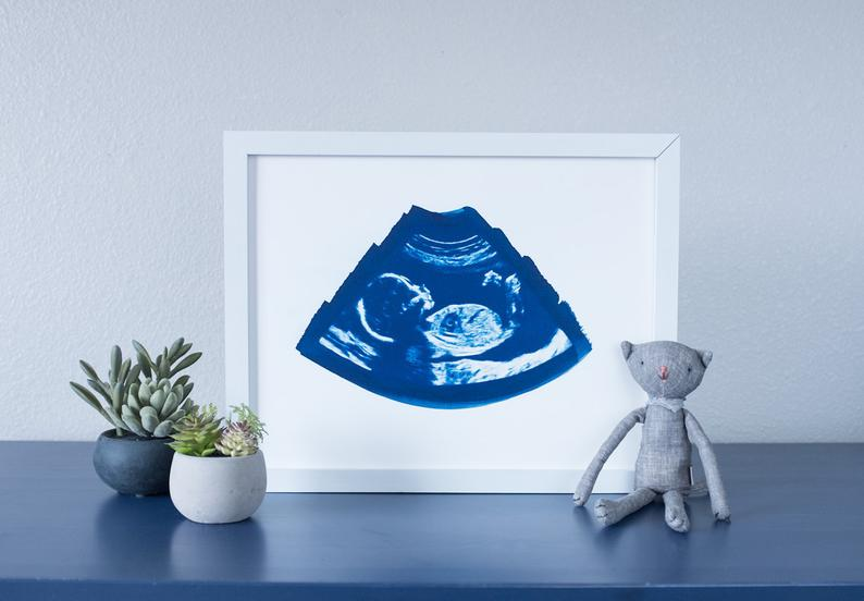 Etsy ultrasound watercolor print