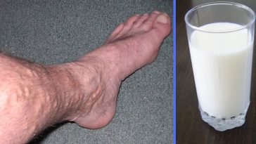 Learn the simple recipe to cure varicose veins at home