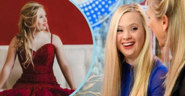 Model With Down Syndrome Encourages Everyone To Practice Kindness And Respect