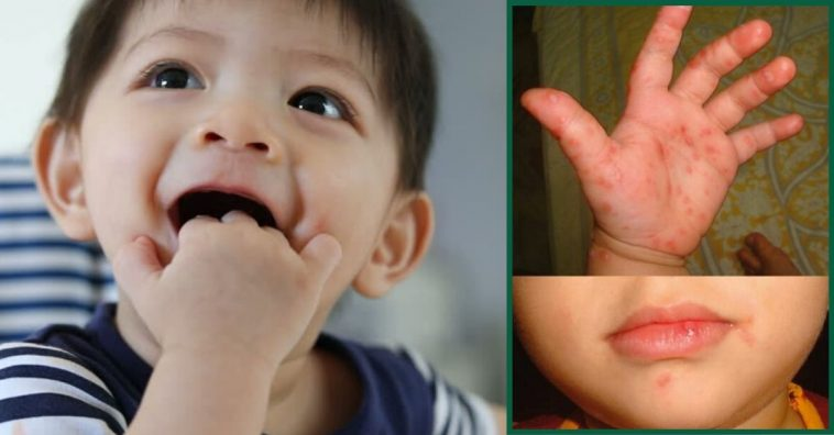 How To Prevent Your Little Ones From Catching & Spreading Hand, Foot, & Mouth Disease