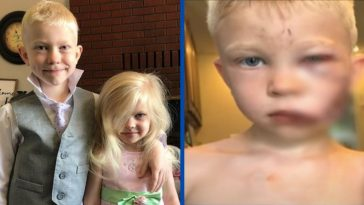 6-year-old boy saves sister from dog attack