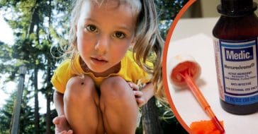 No child wanted to get caught with a wound and face this painful antiseptic