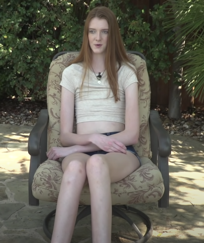 Texas Teen Wins Guinness World Record For The Longest Legs