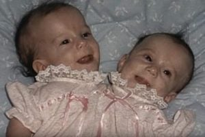 Abby and Brittany Hensel as babies