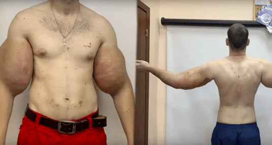 real-life popeye has 3 lbs of dead muscle removed from biceps