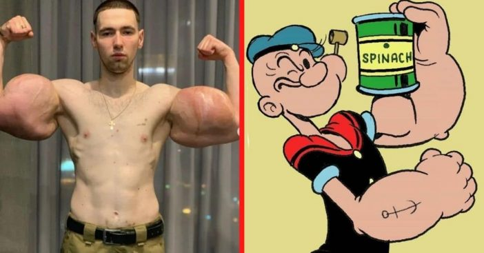 real-life popeye gets 3 lbs of dead muscle removed from biceps