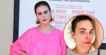 Tallulah Willis Is 'Truly Proud' Of Her Progress With Skin Struggles (1)